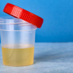 Plastic container with urine